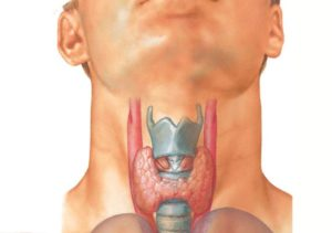 перелом кадыка или гортани