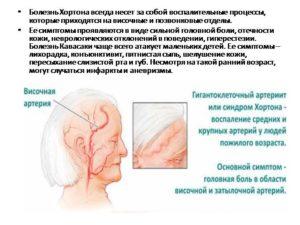 Симптомы болезни - височные боли