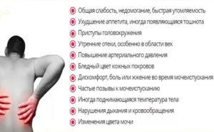 Симптомы болезни - боли в левой почке