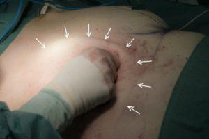 Потеря лимфы после операции