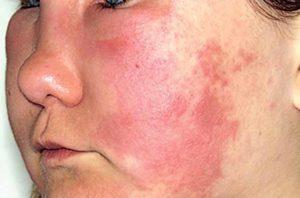 Аллергическая сыпь (крапивница и ангионевротический отек) (продолжение...)