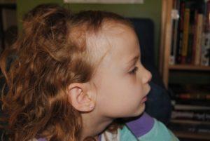неравномерно растут волосы у ребенка.