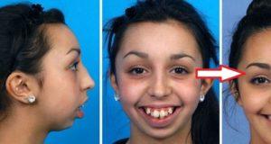 Искривление челюсти