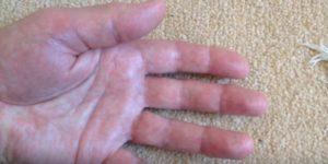 Лопаются сосуду на пальцах рук