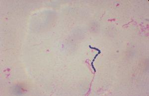 стрептококки в моче
