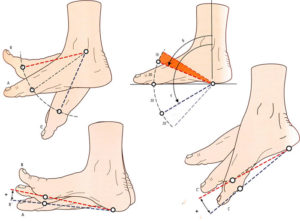 Не сгибается нога в голеностопном суставе