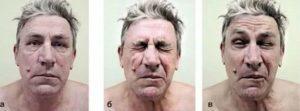Параличи и спазмы мышц век