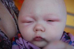 У ребенка опухло лицо!
