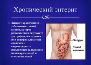 Симптомы болезни - нарушения функции кишечника