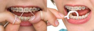 Уход за зубами при ношении брекетов и ретейнеров