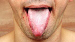 Симптомы болезни - нарушения вкуса