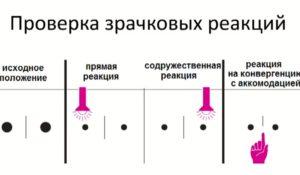 Исследование зрачков и зрачковых реакций