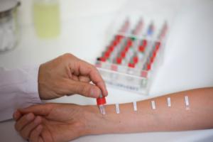 Тесты на аллергию и астма