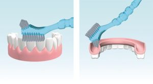 Уход за зубным протезом