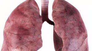 Туберкулёзное поражение?