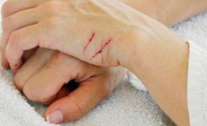 На руке плохо заживает рана