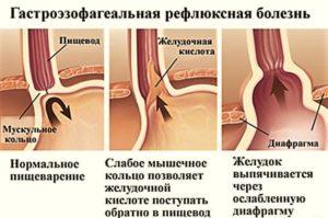 Изжога и гастроэзофагеальная рефлюксная болезнь (ГЭРБ)
