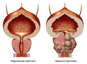 Почки или простатит и аденома