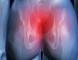 Симптомы болезней у женщин – Ягодицы