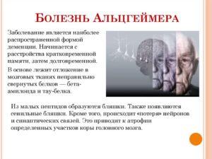 Болезнь Альцгеймера и другие формы деменции