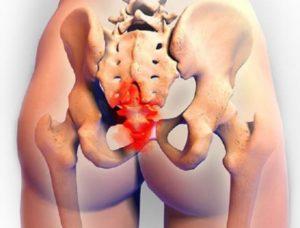 Симптомы болезни - боли в крестце при беременности