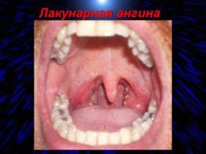 Кость или рана в горле