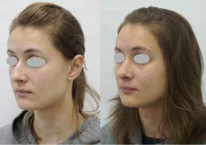 Очки после ринопластики