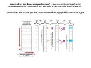 Иммунный блоттинг в диагностике ВИЧ (продолжение...)