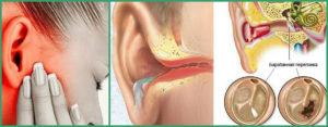 Повреждения внутреннего уха