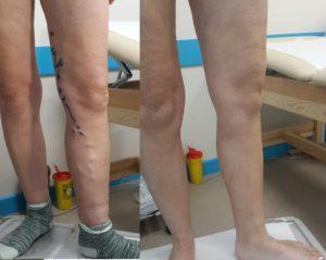 Отёки ног после операции