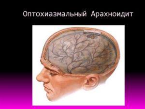 Оптохиазмальный арахноидит