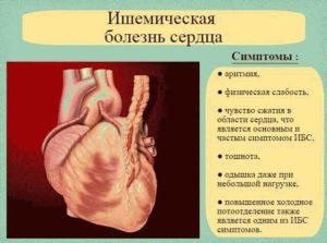 Заболевания сердца: симптомы (продолжение...)
