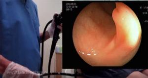 Колоноскопия при беременности