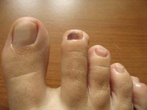 Боль под ногтем большого пальца ноги
