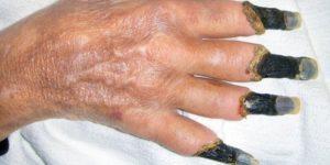 Второй инсульт + гангрена у бабушки