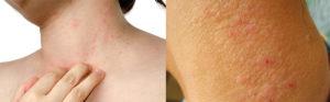 Аллергия на гепарин