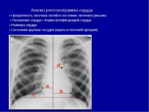 Флюорография - корни расширены, сердце б.о.