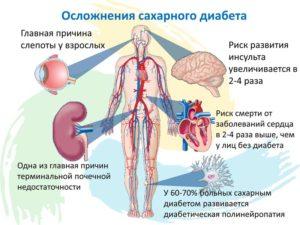 Сахарный диабет 2 типа: Лечение осложнений