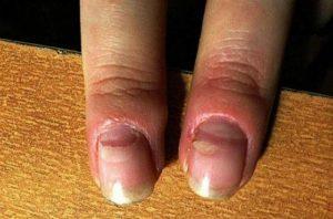 Отваливаются ногти у ребёнка