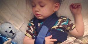 Перелом ключицы у ребенка 1,5 года