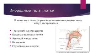 Инородные тела глотки