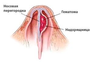 Гематомы и абсцессы перегородки носа