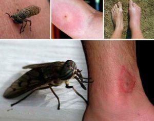 После укуса насекомого
