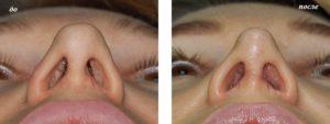 Проблемы со слизистой носа