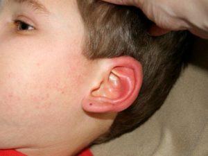 У ребенка горят уши и щеки