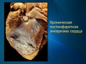 Постинфарктная аневризма сердца