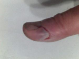 Cкальпированная рана пальца (подушечка мезинца)