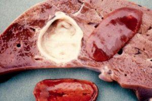 Описторхоз печени