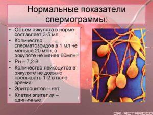 Анализ спермы (семенной жидкости) - спермограмма
