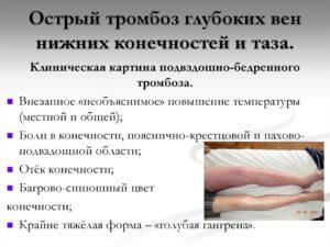 Острые тромбозы глубоких вен нижних конечностей